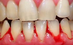 Chảy máu chân răng: Hiện tượng không thể thờ ơ