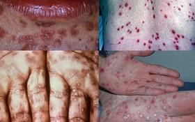 Dấu hiệu bệnh hạ cam ở nam giới giai đoạn sớm