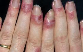 Bệnh cước chân tay- nỗi ám ảnh của nhiều người vào mùa đông