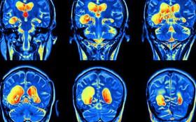 Điều gì xảy ra bên trong não bộ khi bạn bị trầm cảm?