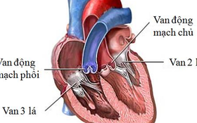 Ai là những người có nguy cơ mắc bệnh van tim?