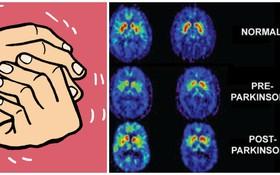 Trầm cảm và cảnh báo dấu hiệu bị bệnh Parkinson