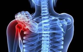 Phương pháp điều trị ung thư vú di căn xương
