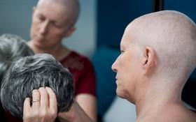Ung thư vú di căn não là gì? Biểu hiện và cách điều trị hiệu quả