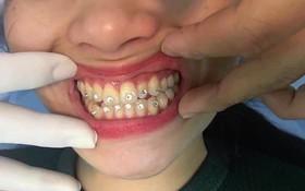 Đính đá vào răng có hại không và những điều bạn nên biết