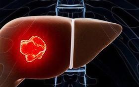 Cảnh báo: Ung thư là một trong nhiều biến chứng của viêm gan C