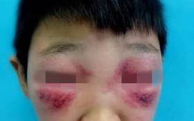 Cha mẹ dễ bị nhầm lẫn giữa biểu hiện viêm mao mạch dị ứng và cảm cúm ở trẻ em