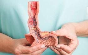 Sai lầm thường gặp về điều trị bệnh ung thư thực quản