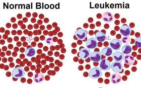 Một số câu hỏi thường gặp về bệnh bạch cầu