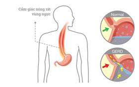 Bệnh trào ngược dạ dày thực quản có khỏi được không?