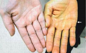 Vàng da - Dấu hiệu bệnh gan nhiễm mỡ đang tiến triển