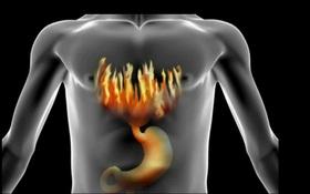 Chẩn đoán bệnh thông qua chứng ợ nóng như thế nào?
