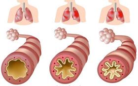 Tìm hiểu về dấu hiệu và cách điều trị hen phế quản độ 2