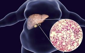Điều trị gan nhiễm mỡ độ 2 hiệu quả và an toàn
