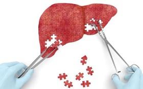 Tổng hợp chung về phương pháp điều trị xơ gan
