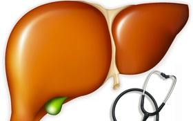 Những sai lầm khi điều trị xơ gan thường gặp