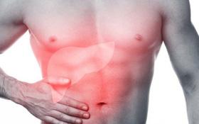 Nhận biết dấu hiệu bệnh xơ gan theo từng giai đoạn