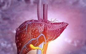Thói quen ăn uống có thể gây bệnh xơ gan mà ít người chú ý!