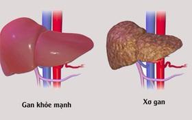 5 dấu hiệu nhận biết sớm bệnh xơ gan không phải ai cũng biết