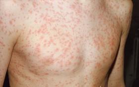 Sốt virus có phát ban không? Những điều cần biết về phát ban do sốt virus