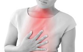 Các câu hỏi thường gặp về bệnh trào ngược dạ dày thực quản