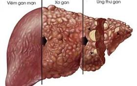 Đừng nhầm lẫn xơ gan cổ trướng và ung thư gan