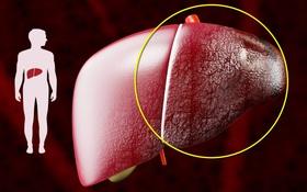 7 lưu ý quan trọng khi chăm sóc bệnh nhân xơ gan