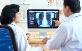 Chụp X-quang trong chẩn đoán hen suyễn: vai trò và quy trình thực hiện