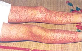 Bệnh viêm mao mạch dị ứng: dấu hiệu, nguyên nhân, điều trị và cách phòng ngừa