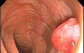 Polyp đại tràng là gì? Tất cả những điều cần biết về bệnh polyp đại tràng