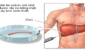 Tìm hiểu chung về phương pháp sinh thiết gan