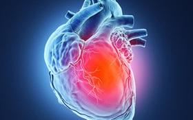 Nhồi máu cơ tim là gì? 10 điều cần nhớ về nhồi máu cơ tim