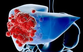 Tìm hiểu biến chứng ung thư gan do xơ gan
