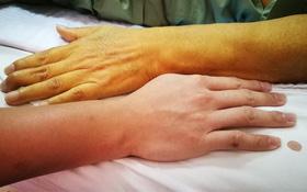 Tìm hiểu biến chứng suy gan do xơ gan