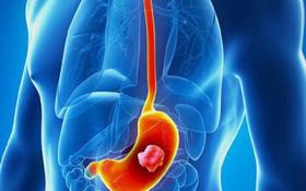 Ung thư dạ dày: Triệu chứng, nguyên nhân, chẩn đoán, điều trị và chế độ dinh dưỡng