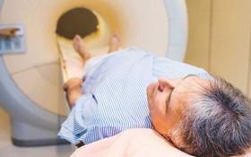 Tiên lượng sống cho bệnh ung thư vòm họng theo từng giai đoạn