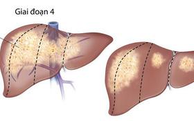 Những điều cần biết về ung thư cổ tử cung di căn gan