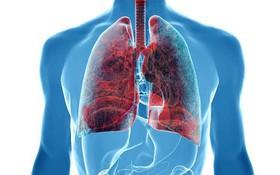 Tìm hiểu về 8 loại ung thư phổi theo phân loại của WHO