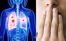 Ung thư phổi có nguy hiểm không?