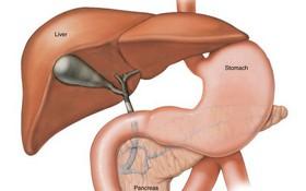 Nhầm tưởng là đau dạ dày thông thường bệnh nhân ung thư gan tá hoả khi bị chẩn đoán giai đoạn cuối