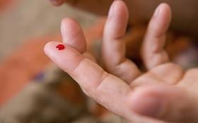 Có nên dùng kim chích vào đầu ngón tay để sơ cứu người bị đột quỵ?