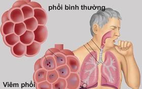 6 biến chứng của viêm phổi cần được chú ý đặc biệt