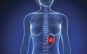 Phân biệt polyp dạ dày lành tính và polyp có nguy cơ thành khối u dạ dày ác tính (ung thư dạ dày)
