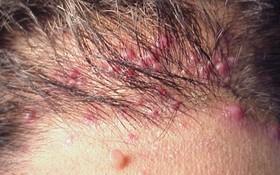 Bệnh viêm nang lông có nguy hiểm không?