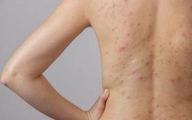Viêm nang lông ở lưng: Triệu chứng, nguyên nhân, phòng ngừa và cách chữa trị