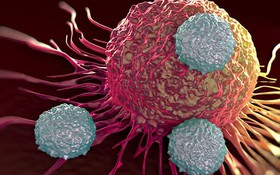 Viện K kéo dài thời gian sống cho bệnh nhân nhờ liệu pháp miễn dịch