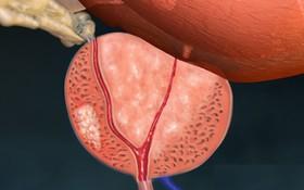 Vấn đề về sức khoẻ tình dục sau cắt bỏ tuyến tiền liệt