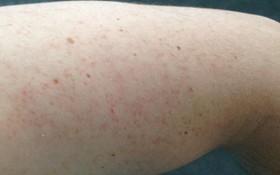 Ai có nguy cơ mắc viêm nang lông cao?