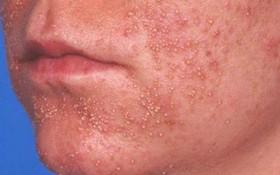 Tìm hiểu về dấu hiệu nhận biết viêm nang lông ở mặt