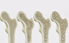 Bệnh loãng xương có mấy loại? Phân biệt các dạng loãng xương